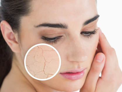 How to moisturize oily skin best moisturizer for acne prone skin why is it important to use moisturizer if you have oily skin best ways to stop skin from looking tired natural products by Mattify cosmetics long lasting makeup that is vegan