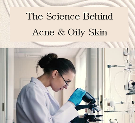 what is the scientific cause of acne breakouts and why do certain people get more zits than others