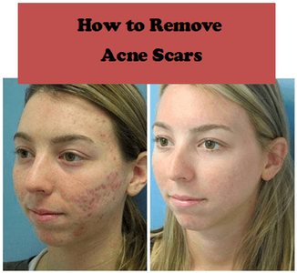 How to get rid of acne scars with light therapy, laser therapy, and skin peels that prevent breakouts and flatten skin that has raise scars or dents from zits